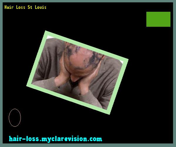 Hair Loss St Louis 121607 - Hair Loss Cure!