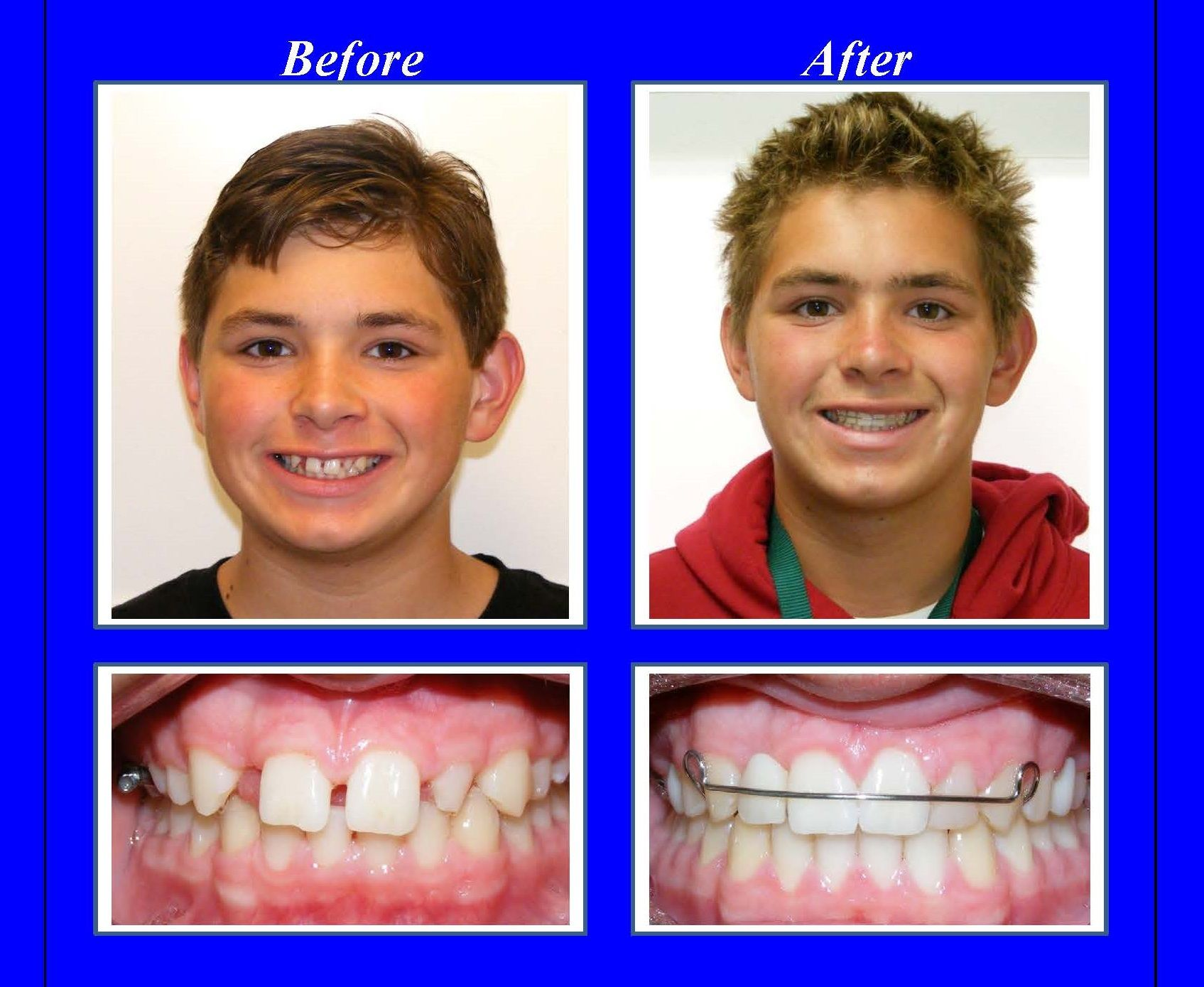 This patient was missing his upper right lateral incisor and his ...
