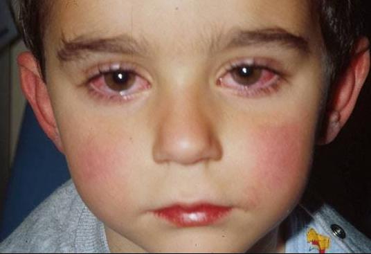 كيفية علاج حساسية العين عند الاطفال Poverty Health Human