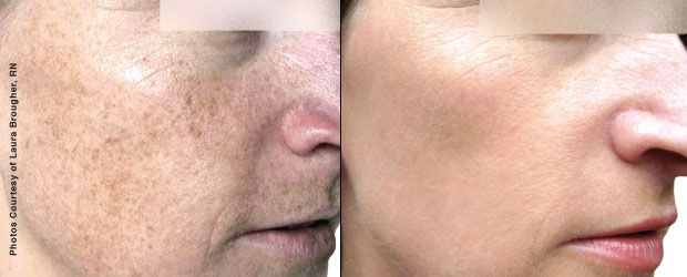 Forever Young Bbl Photofacial A Ground Breaking Study From Stanford University States That Forever Young Facial Plastic Surgery Facial Plastic Plastic Surgery