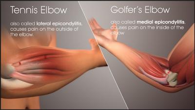 Healthy Lifestyle And Gaming Mengenal Lebih Dalam Perihal Cedera Tennis Elbow