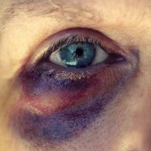 83a1f5d9ebf11c22bab24a621fdd3017 - How To Get Rid Of A Black Eye Really Fast