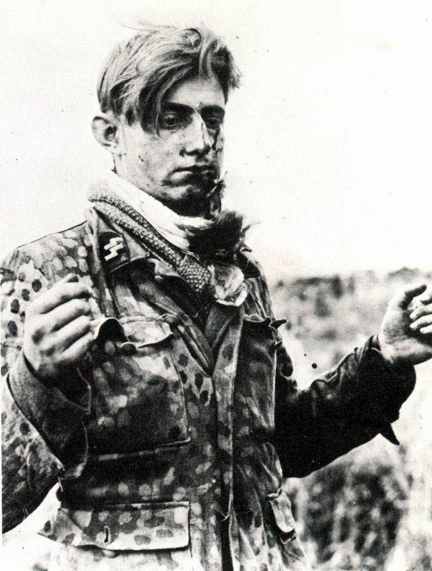 A young Grenadier of 12th-SS Hitlerjugend captured by Canadian soldiers near Caen, France. He has been wounded in the face from shrapnel however his chances of recovery are now in his favor. For him the war was over.