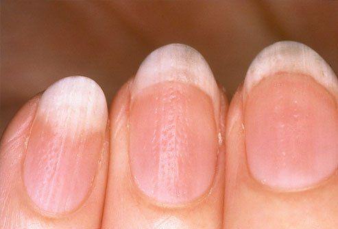 Nails White Spots Mineral Deficiency But Often Low Zinc Ridges Soft Or Brittle Magnesium Bitten General