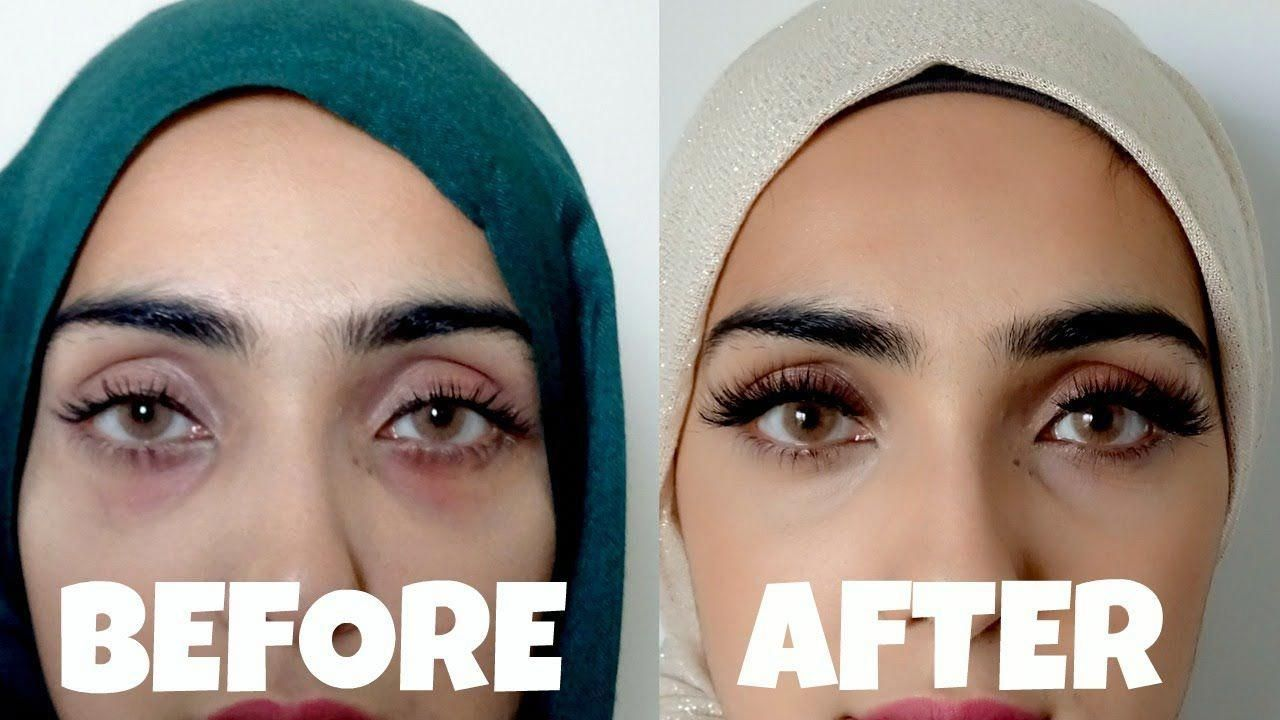 How to Get Rid of Dark Circles and Bags Under Eyes | Natural + Effective - YouTube #getridofwrinklescream #DarkCirclesUnderEyes #darkcircle