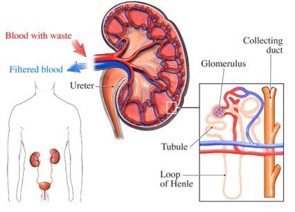 Acute Glomerulonephritis – Causes, Symptoms, Diagnosis, Treatment ...