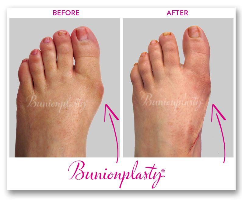 Bunionplasty Bunion Surgery in 2020 Bunion surgery