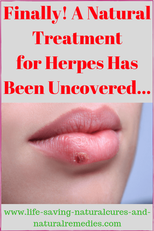 Best Natural Remedies & Home Treatments for Reversing Herpes HSV1