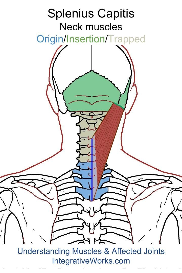 Understanding Trigger Points – Headache on the Top of Your Head ...