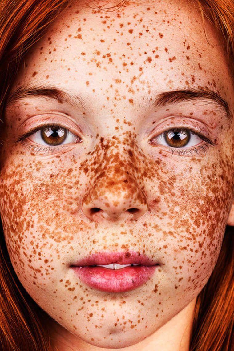Freckles u de magnifiques photographies en hommage aux taches de