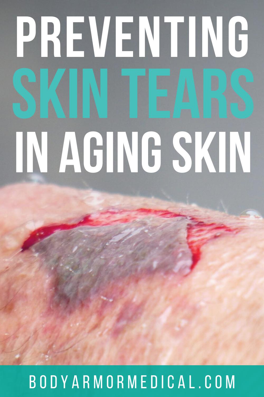 Preventing Skin Tears In Aging Skin In 2020 Prevention Skin Medical Supplies
