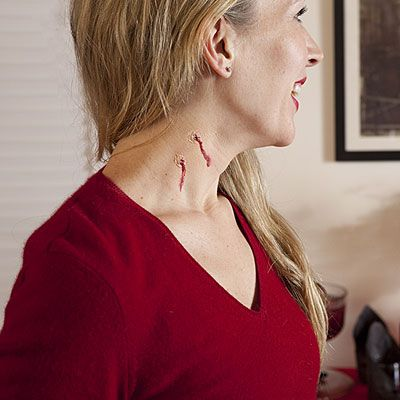 Marks neck bite CDC