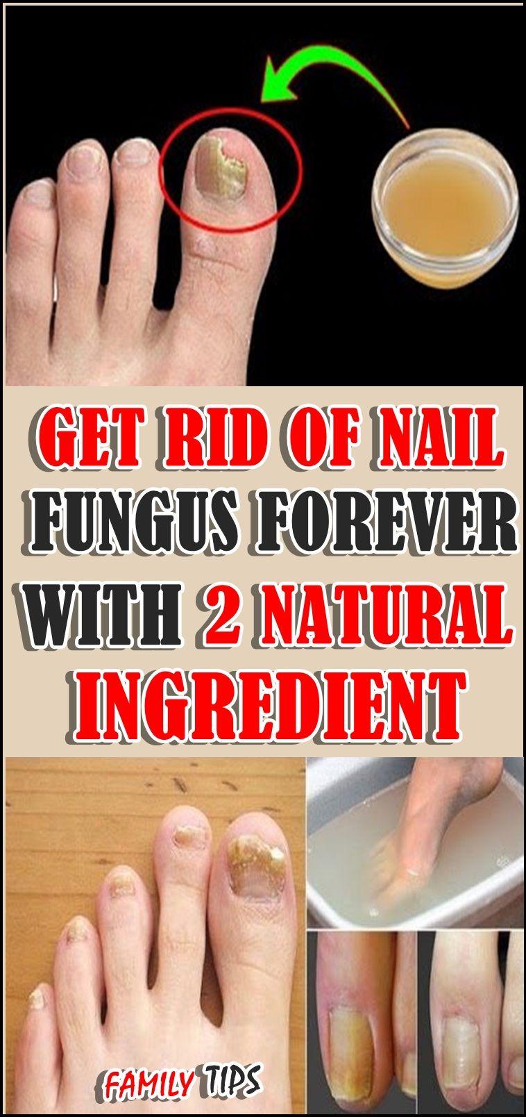 Get Rid Of Nail Fungus Forever With 2 Natural Ingredient Nail Fungus Fungi Toe Nail Discoloration