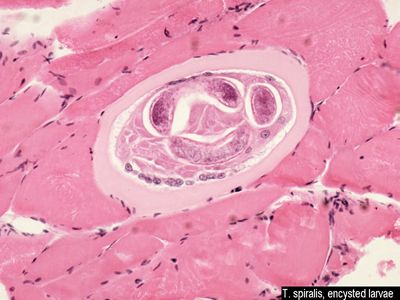 Trichinella spiralis- if it's in muscle, and it looks remotely coiled, pick this!