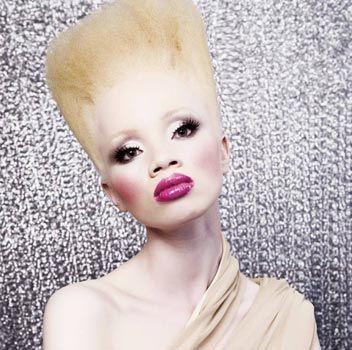 La modella albina Thando Hopa