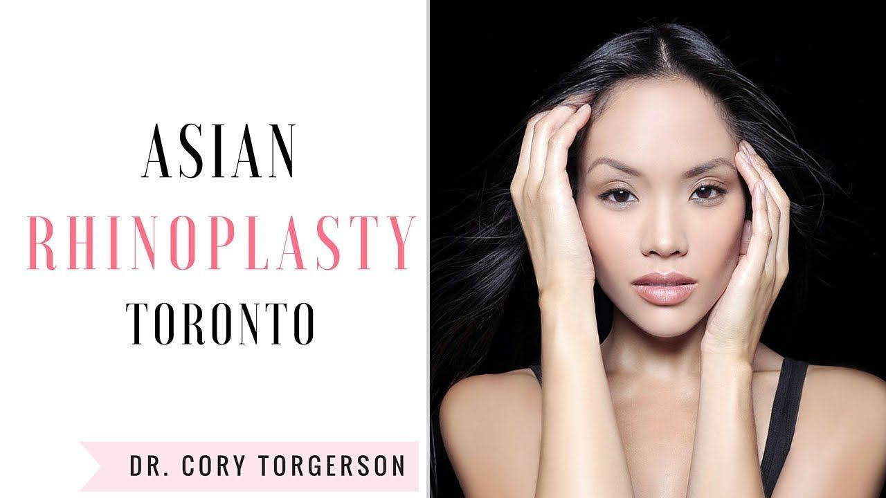 Asian Rhinoplasty Toronto Dr. Cory