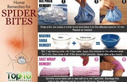 Home Remedies For Spider Bites Health Pinterest