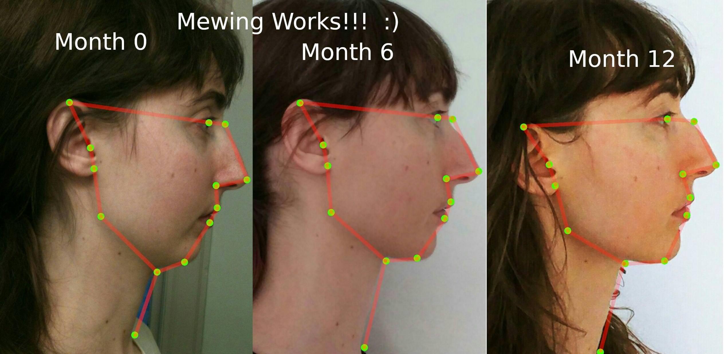 Mewing results the proper tongue posture mit bildern