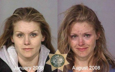 8 months in-between these 2 pictures. Notice the signs of meth use ...