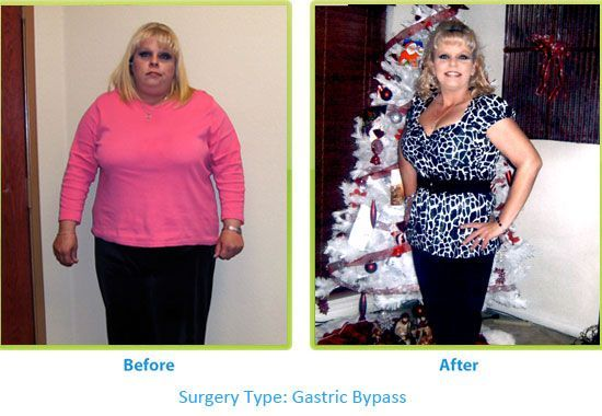 Amazing Before And After Surgery Results With My Bariatric Solutions