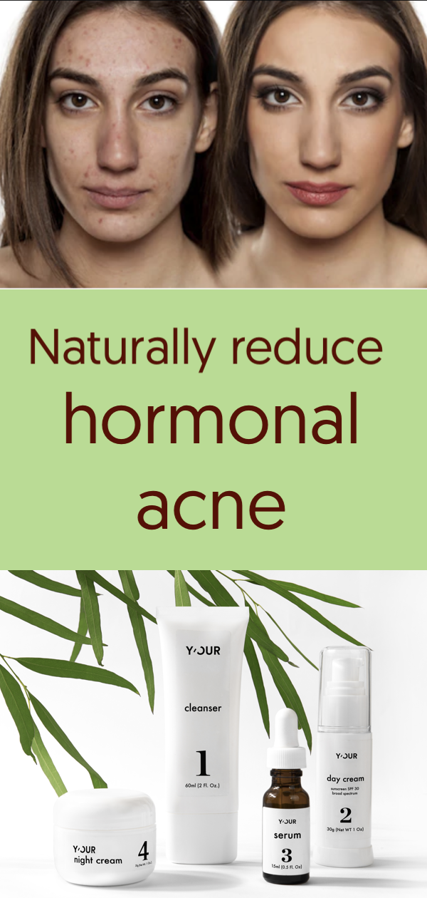 Personalized Skin Care To Naturally Reduce Hormonal Acne Beauty Skin Care Skin Care Hormonal Acne