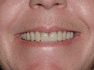 Immediate Dentures Before and After Pictures  When someone has made