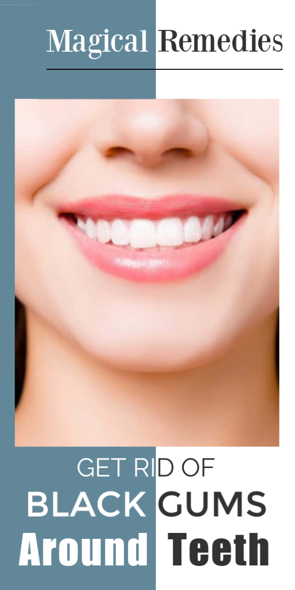 Black Gums Around Teeth Causes Best Home Remedies To Treat It Naturally Oralcare Oralcaretips Oralcarepro Blackgu Black Gums Oral Health Care Remedies