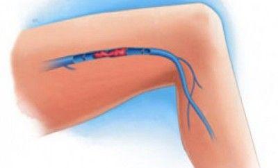 tratar la trombosis de forma natural