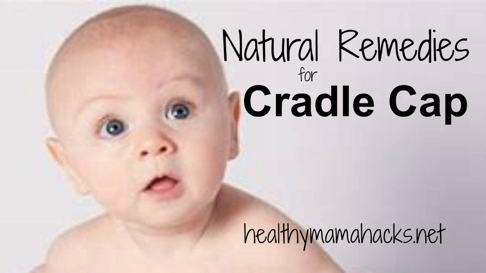 Cradle Cap Remedies That Are Natural Safe And Effective Cradle Cap Holistic Health Remedies Natural Remedies
