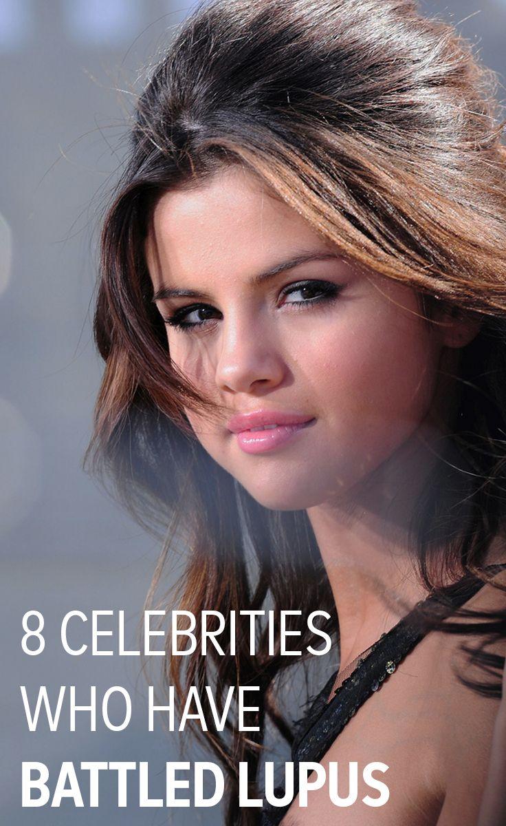 8 Celebrities Who Have Battled Lupus Lupus Diagnosis Lupus Nephritis Lupus