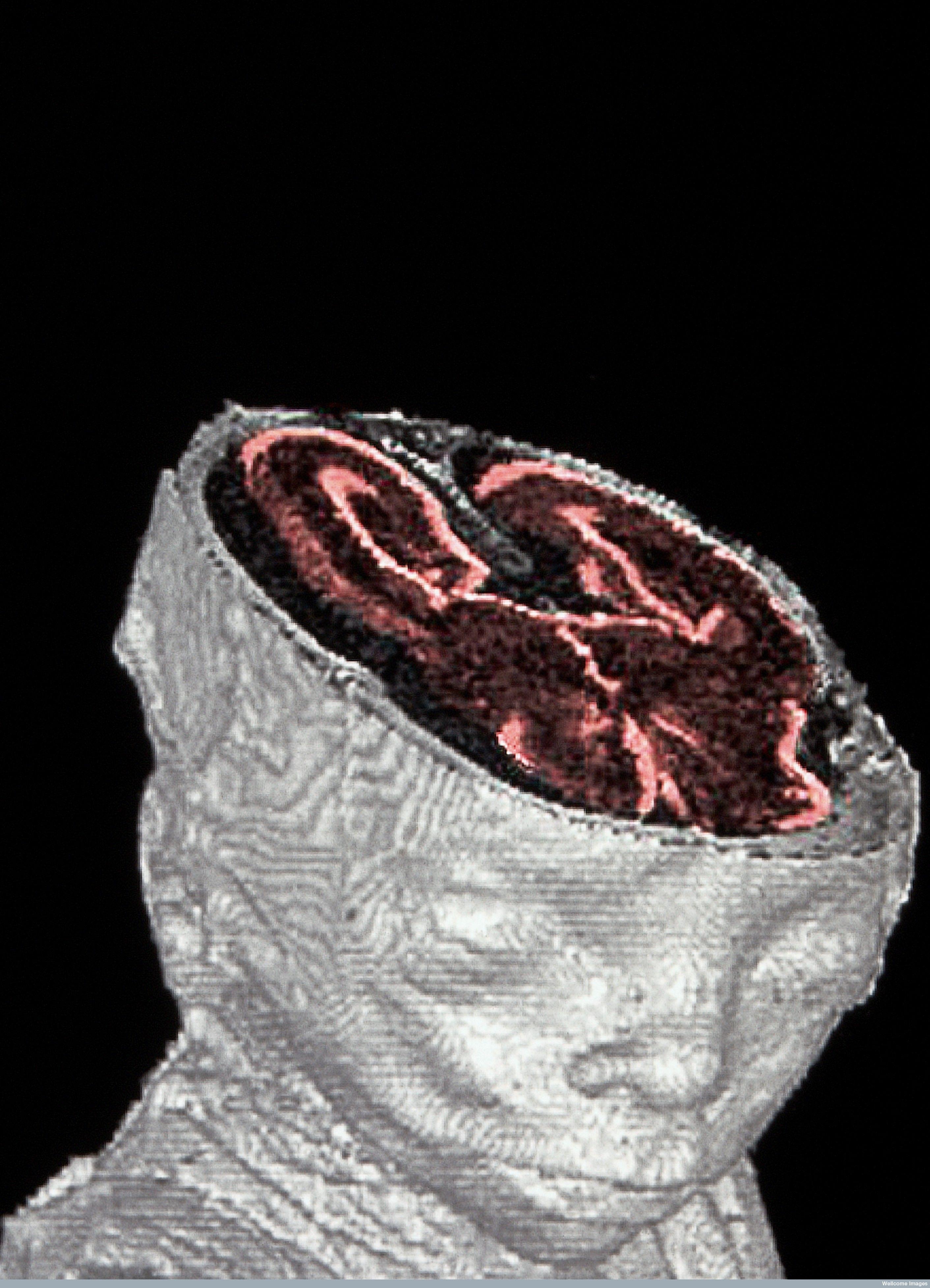 Foetal MRI scan A high resolution magnetic resonance imaging (HRMRI ...