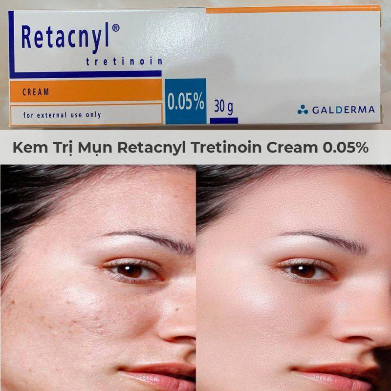 Kem Trị Mụn Galderma Retacnyl Tretinoin Cream 0 05 30g Trị Mụn Da Kho điều Trị Mụn
