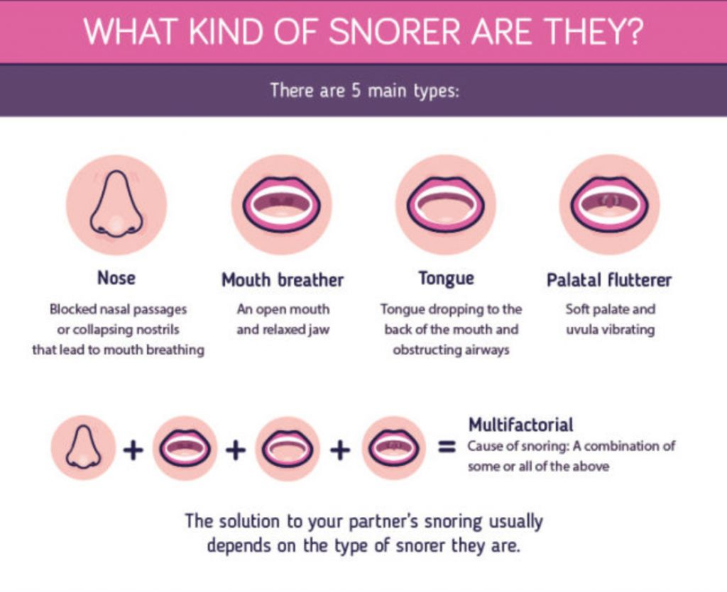 How To Stop Your Partner Snoring Infographic Health