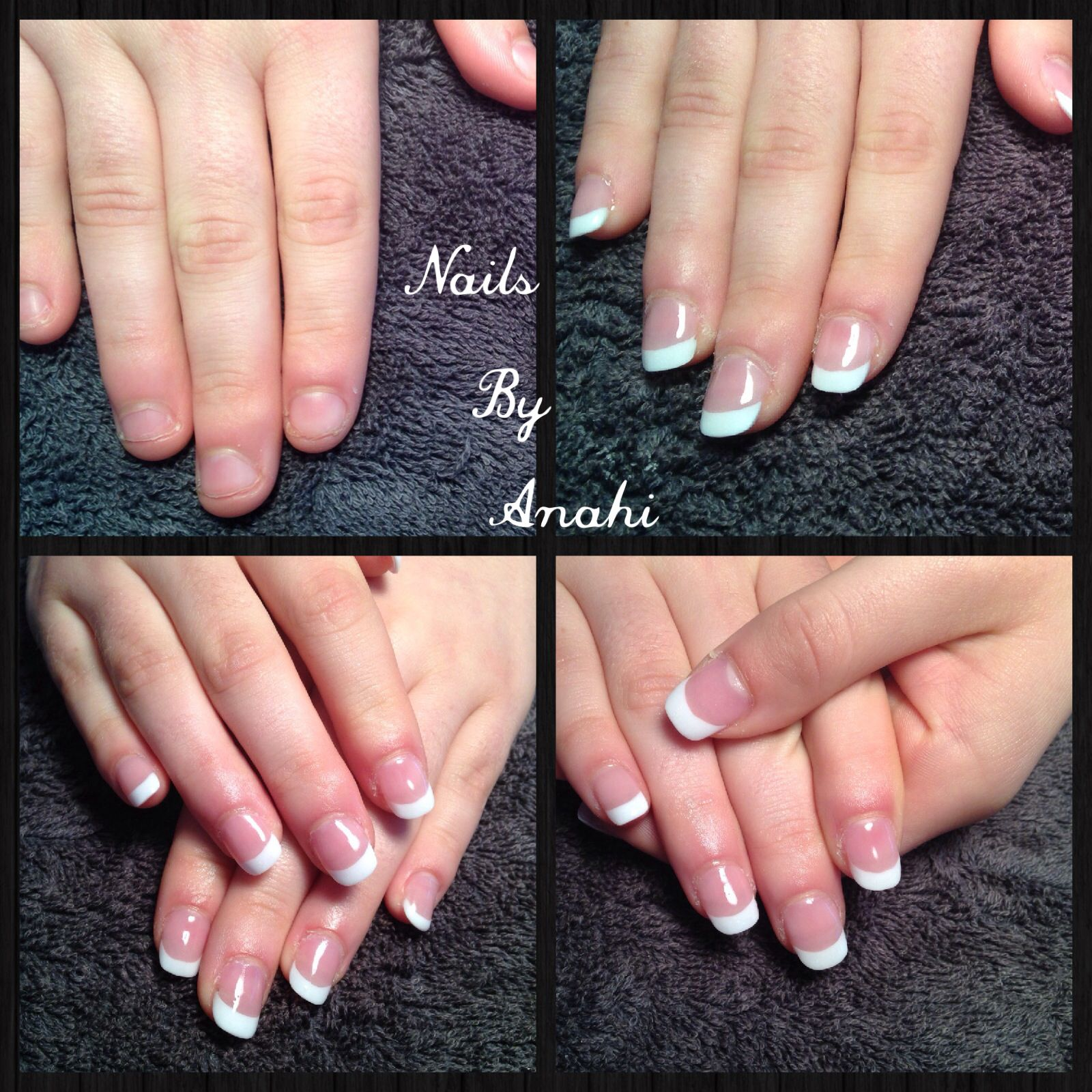 Permanent French acrylic on a nail biter! | Acrylic nails ...