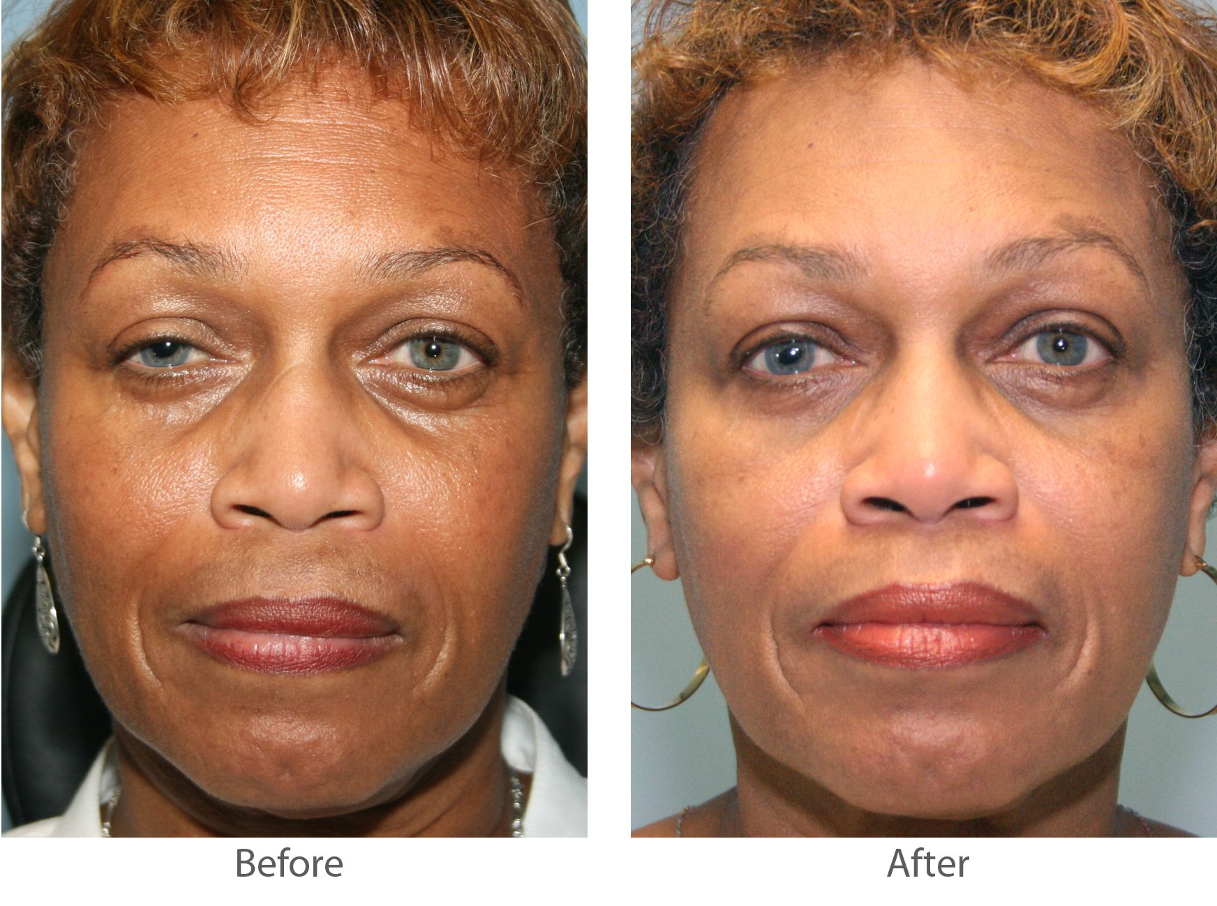 Eyelid Surgery Recovery During Your Lubricating Ointment And Cold Compresses May Be