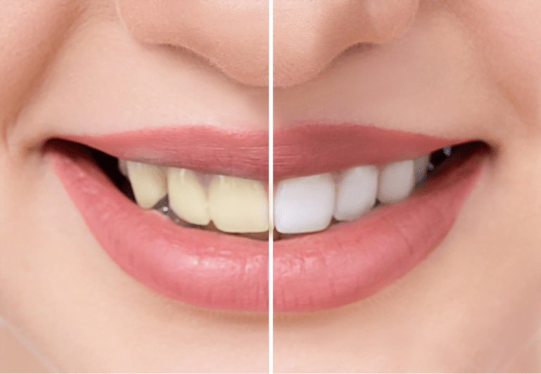 Pin on whiten your teeth