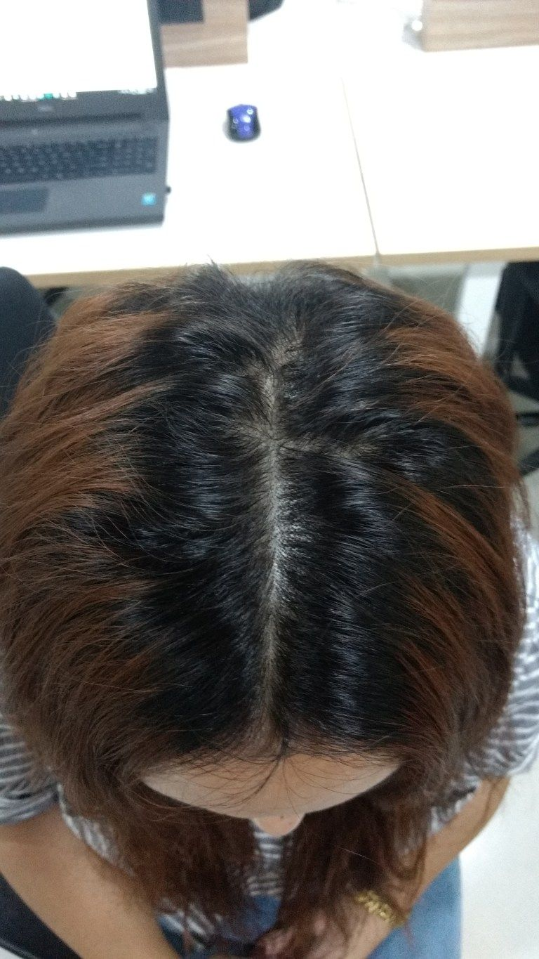 How To Use Rosemary Essential Oil For Hair Growth  Rosemary oil