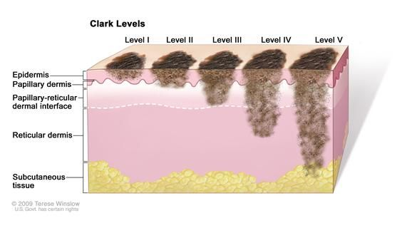 Did you know Melanoma has stages? Early detection is key