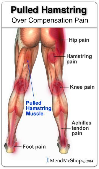 An Injury To The Hamstring Will Potentially Lead To Aches And Pains