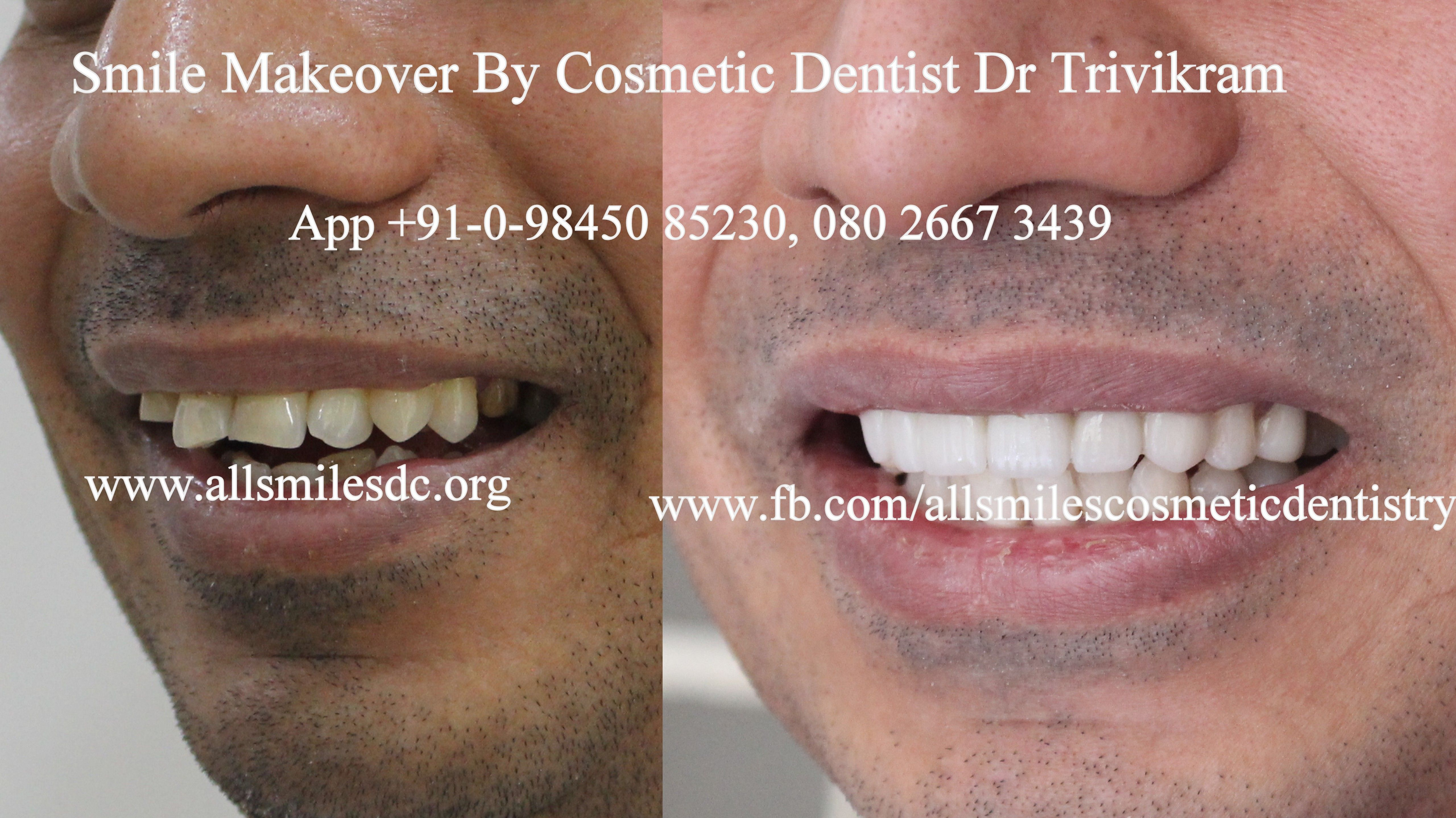 Pin By Dr Trivikram Cosmeticdentist Bangalore On Cosmetic