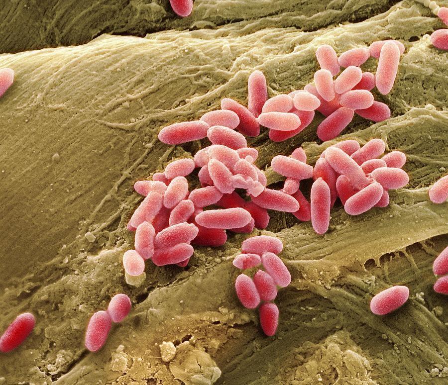 Resultado de imagen para Pseudomonas aeruginosa