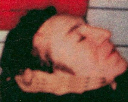 John Lennon Autopsy Photos 8453f44aef976108ba694a5c655e ...