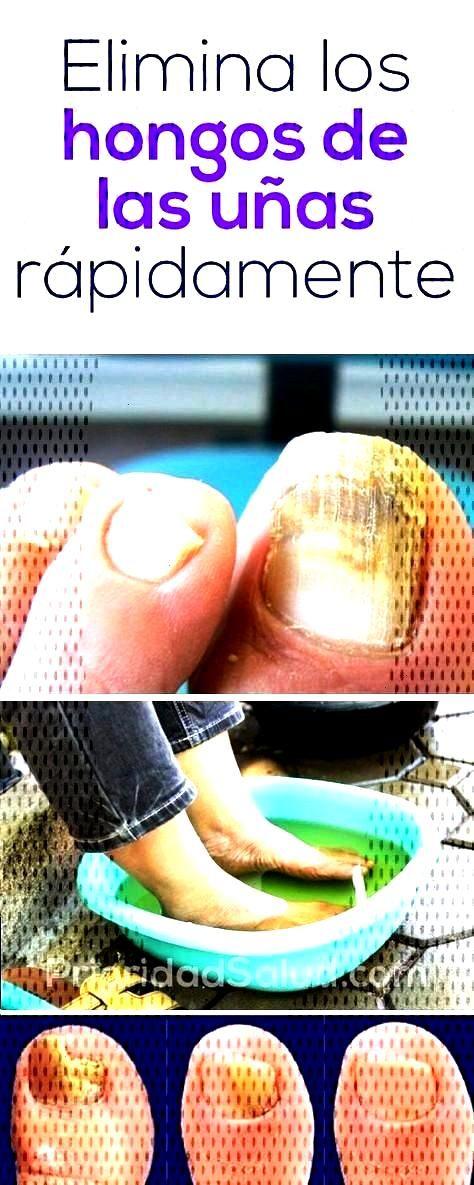 Elimina los hongos de los pies para siempre con este simple remedio casero. -Elimina los hongos ...