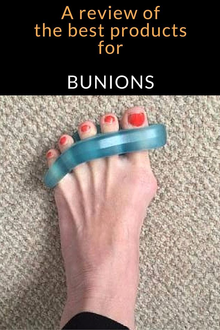 how to shrink tailor's bunions naturally