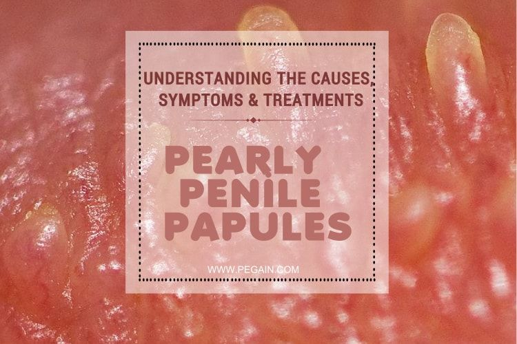 severe pearly penile papules