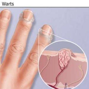 wart treatment hydrogen peroxide