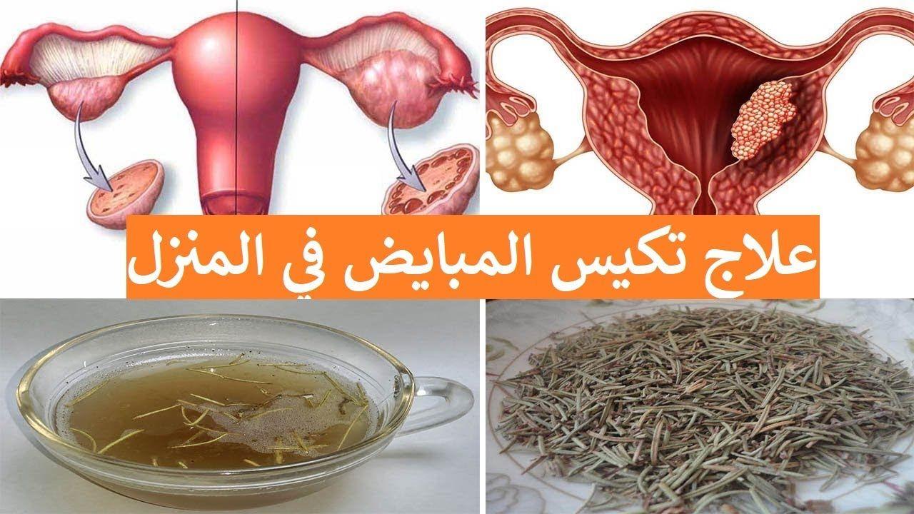 علاج تكيس المبايض بالاعشاب في 4 دقائق التكيسات على المبايض وعلاجها بال Vegetables Garlic Radish