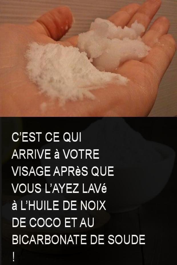 Cest ce qui arrive à votre visage après que vous layez lavé à lhuile de noix de coco et au bicarbonate de soude !