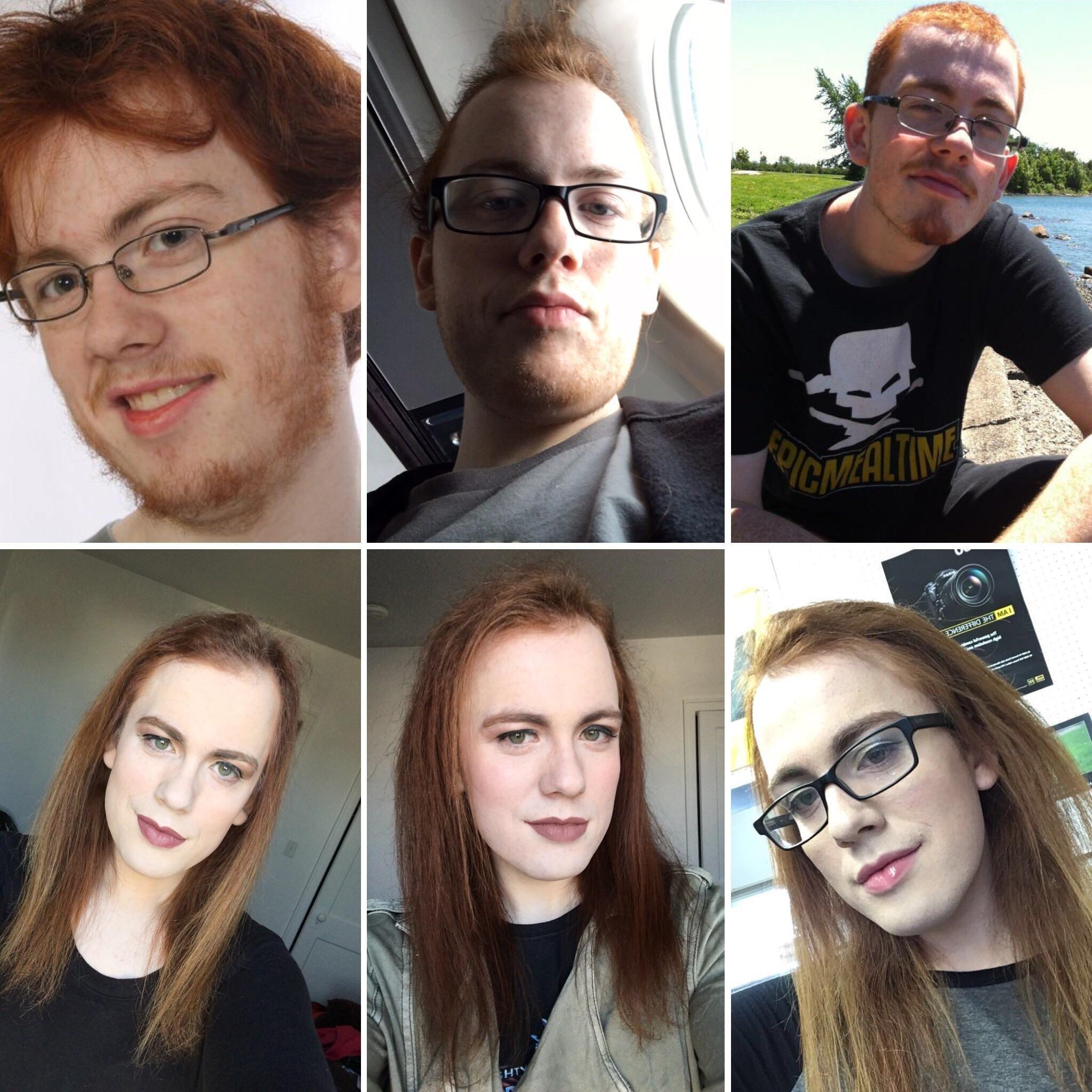 Afd Transgender