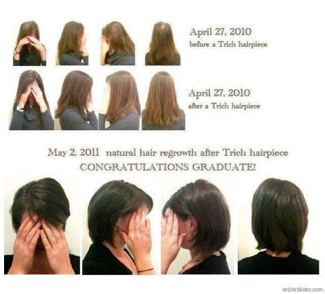 Trichotillomania Hair Regrowth Hannah Natural Hair Regrowth Hair Regrowth Skin Care Hair Care